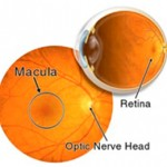 Image of the inside of the eye showing the retina
