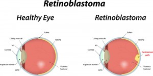 diagram comparing an eye suffering retinoblastoma to a healthy eye